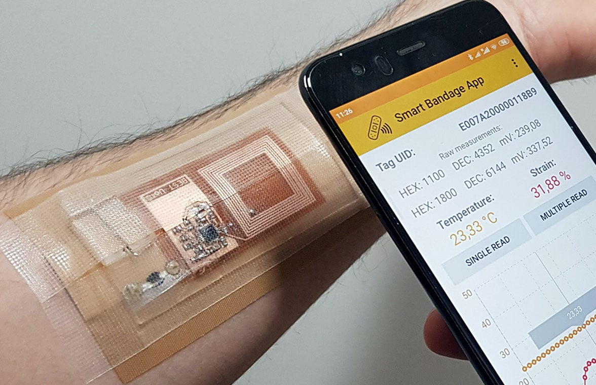NFC smart bandage with smartphone